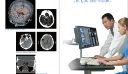 16排螺旋CT功能及临床应用简介